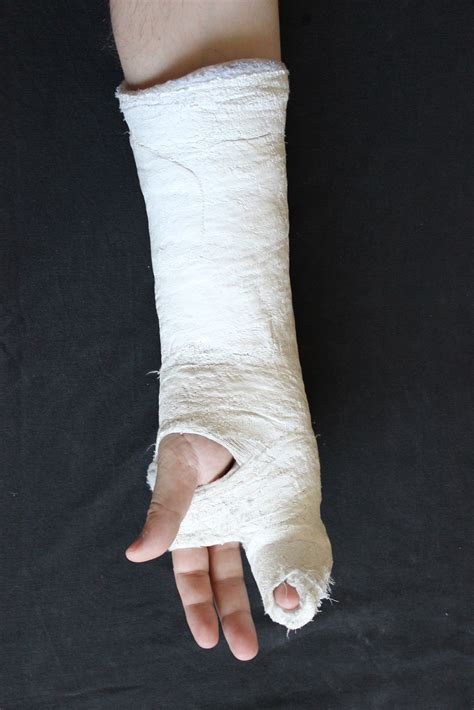 File:Hand in gips (Fifth Metacarpal Fracture) 3