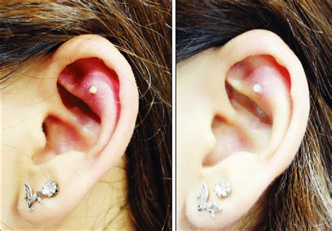 Local infection without granuloma after helix piercing